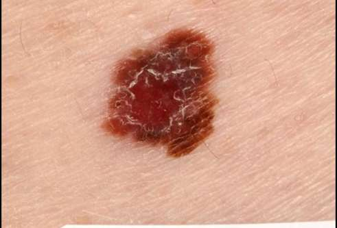 Pic of skin cancer